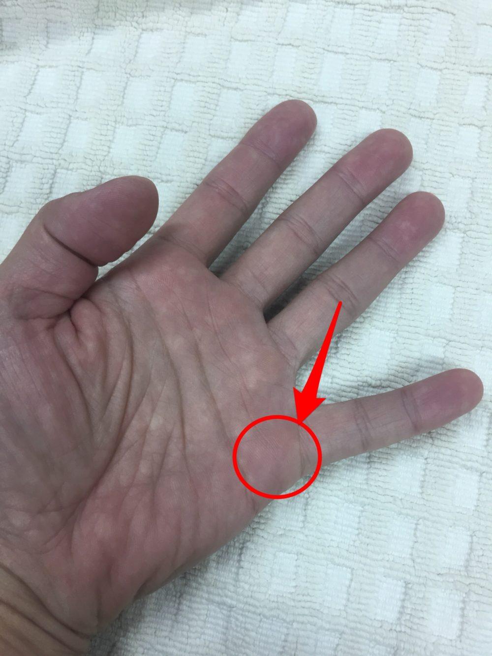 手のひら小指手付け根部分